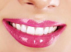 Бижутерия для зубов? Почему бы и нет!