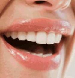 Как самостоятельно отбелить зубы, не повредив при этом эмаль?