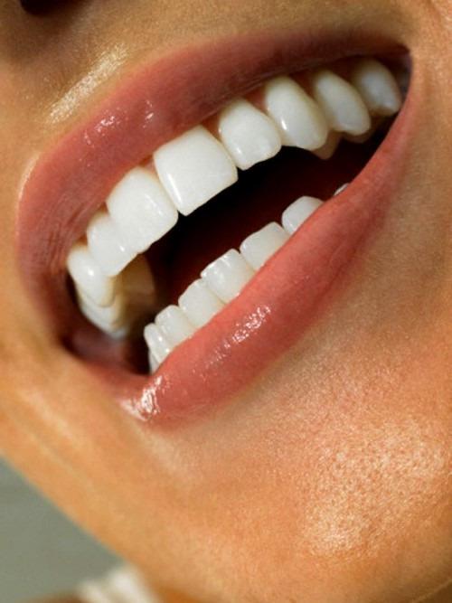 Как отбелить зубы с помощью перекиси водорода?