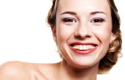 Стоит ли ставить брекеты женщинам после 30 лет?