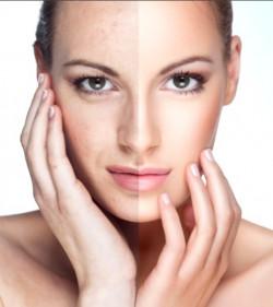 Как весной осветлить и защитить кожу лица